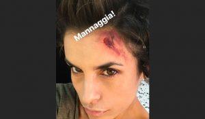 elisabetta-canalis-ferita-instagram_22093025